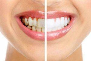 تیره شدن دندان ها