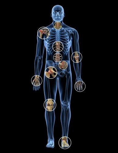 مفاصل بدن