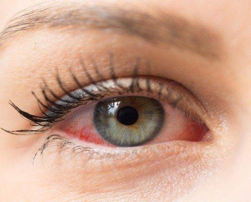چشم های قرمز